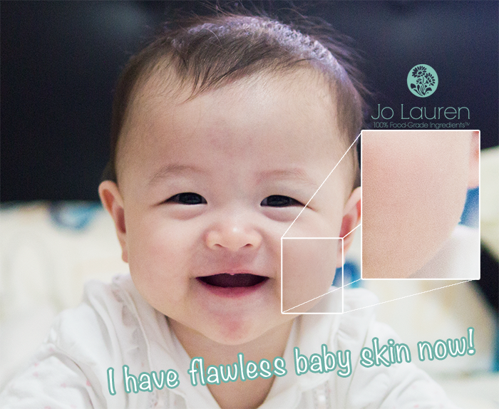 baby eczema singapore before and after